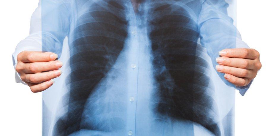 Weibliche Hände halten Röntgenbild eines Oberkörpers